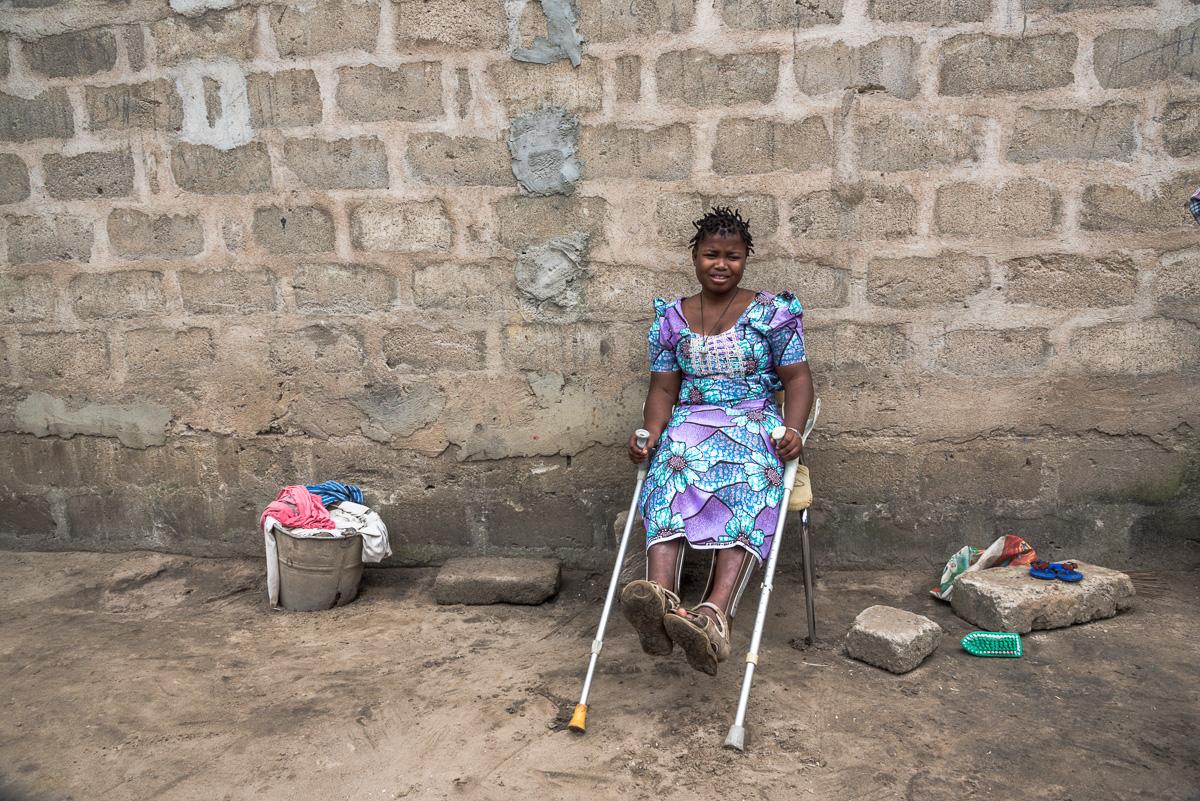 Gehandicapte kinderen in Benin
